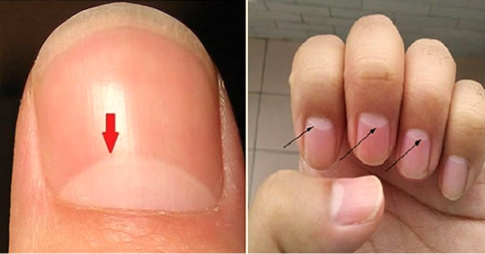 This White Part On Your Nail Tells A Lot About Your Health. Here's What It Means